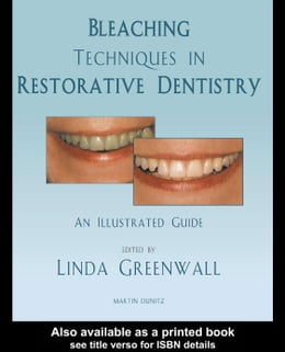 Book Bleaching Techniques in Restorative Dentistry: An Illustrated Guide by Greenwall, Linda