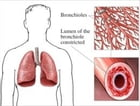 Aspergillosis: Causes, Symptoms and Treatments by Linda Besch