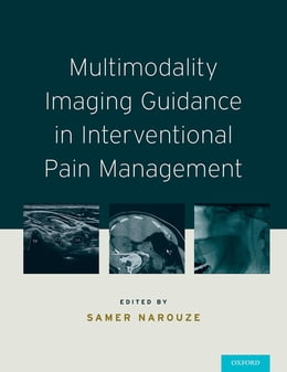 Book Multimodality Imaging Guidance in Interventional Pain Management by Samer N. Narouze