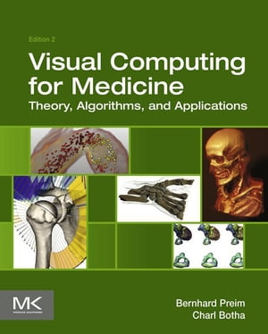 Visual Computing for Medicine Theory,  Algorithms,  and Applications