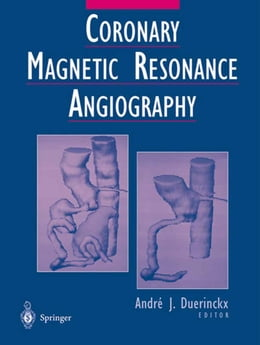 Book Coronary Magnetic Resonance Angiography by A.E. Stillman