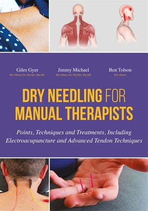 Dry Needling for Manual Therapists Points,  Techniques and Treatments,  Including Electroacupuncture and Advanced Tendon Techniques