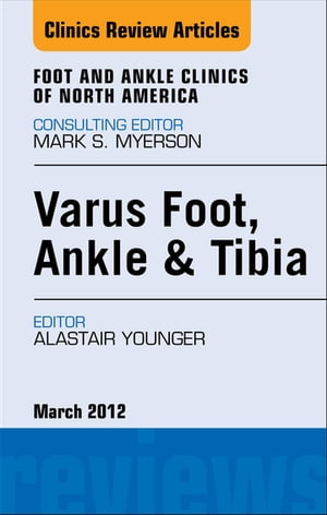 Varus Foot,  Ankle,  and Tibia,  An Issue of Foot and Ankle Clinics