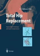 Total Hip Replacement: Implantation Technique and Local Complications by R. Hinchliffe