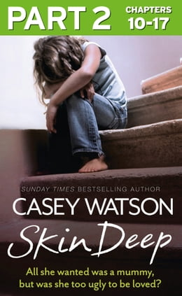 Book Skin Deep: Part 2 of 3: All she wanted was a mummy, but was she too ugly to be loved? by Casey Watson