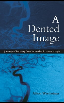 Book A Dented Image: Journeys of Recovery from Subarachnoid Haemorrhage by Wertheimer, Alison