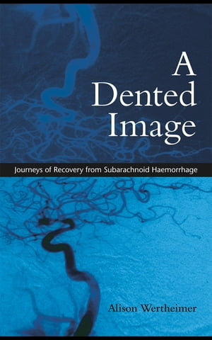 A Dented Image: Journeys of Recovery from Subarachnoid Haemorrhage