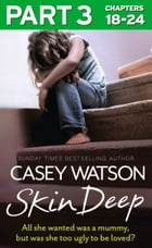 Skin Deep: Part 3 of 3: All she wanted was a mummy, but was she too ugly to be loved? by Casey Watson
