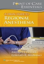 A Visual Guide to Regional Anesthesia