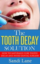 The Tooth Decay Solution by Sandi Lane