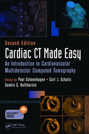 Cardiac CT Made Easy: An Introduction to Cardiovascular Multidetector Computed Tomography,  Second Edition