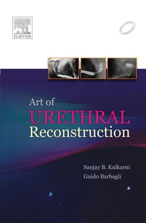 Art of Urethral Reconstruction
