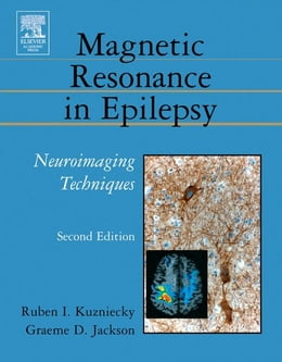 Book Brain Plasticity and Epilepsy: A Tribute to Frank Morrell by Bradley, Ronald J.