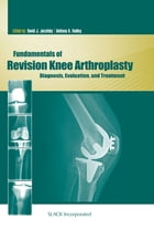 Fundamentals of Revision Knee Arthroplasty: Diagnosis, Evaluation, and Treatment by David Jacofsky
