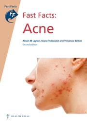 Fast Facts: Acne ebook by Alison M Layton, MB ChB FRCP,Diane Thiboutot, MD,Vincenzo Bettoli, MD