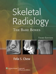 Skeletal Radiology - The Bare Bones ebook by Felix S. Chew