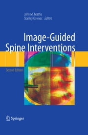 Image-Guided Spine Interventions ebook by John M. Mathis,Stanley Golovac
