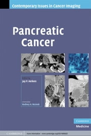 Pancreatic Cancer ebook by Jay Heiken
