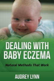 Dealing With Baby Eczema ebook by Audrey Lynn