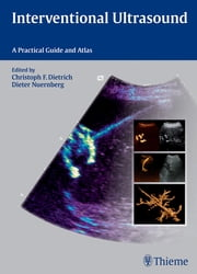 Interventional Ultrasound - A Practical Guide and Atlas ebook by Christoph Frank Dietrich,Dieter Nuernberg