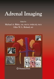 Adrenal Imaging ebook by Michael A. Blake,Giles Boland