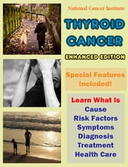 Thyroid Cancer - Learn What Is Cause, Risk Factors, Symptoms, Diagnosis, Treatment, Health Care ebook by National Cancer Institute