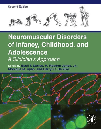 Neuromuscular disorders of infancy childhood and adolescence ebook neuromuscular disorders of infancy childhood and adolescence a clinicians approach ebook by fandeluxe Images