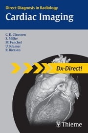 Cardiac Imaging ebook by Claus Claussen,Stephan Miller,Michael Fenchel