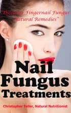 Nail Fungus Treatments: Discover Fingernail Fungus Natural Remedies ebook by Christopher Teller