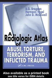 A Radiologic Atlas of Abuse, Torture, Terrorism, and Inflicted Trauma ebook by Brogdon, B. G.