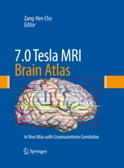 7.0 Tesla MRI Brain Atlas - In Vivo Atlas with Cryomacrotome Correlation ebook by Zang-Hee Cho