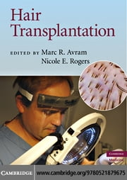 Hair Transplantation ebook by Avram, Marc R.