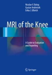 MRI of the Knee - A Guide to Evaluation and Reporting ebook by Nicolae V. Bolog,Gustav Andreisek,Erika J. Ulbrich