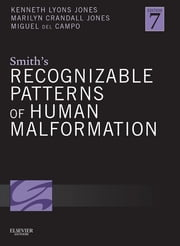 Smith's Recognizable Patterns of Human Malformation E-Book ebook by Kenneth Lyons Jones, MD,Marilyn Crandall Jones, MD,Miguel del Campo, MD, PhD