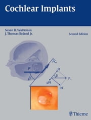Cochlear Implants ebook by Susan B. Waltzman,J. Thomas Roland