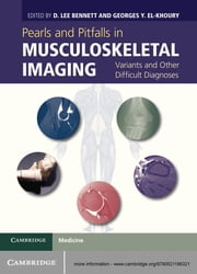 Pearls and Pitfalls in Musculoskeletal Imaging - Variants and Other Difficult Diagnoses ebook by D. Lee Bennett,Georges Y. El-Khoury