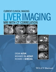 Liver Imaging - MRI with CT Correlation ebook by Ersan Altun,Mohamed El-Azzazi,Richard C. Semelka