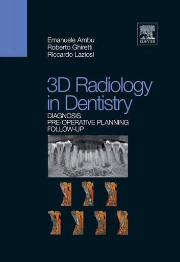 3D Radiology in Dentistry - Diagnosis Pre-operative Planning Follow-up ebook by Emanuele Ambu,Roberto Ghiretti,Riccardo Laziosi