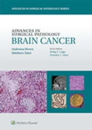 Advances in Surgical Pathology: Brain Cancer ebook by Andreana Rivera,Hidehiro Takei