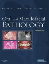 Oral and Maxillofacial Pathology ebook by Douglas D. Damm,Brad W. Neville,Douglas D. Damm,Jerry Bouquot,Angela C. Chi,Carl M. Allen