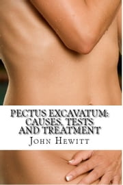 Pectus Excavatum: Causes, Tests and Treatment ebook by John Hewitt