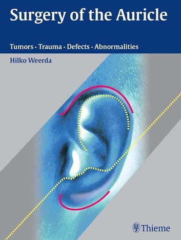 Surgery of the Auricle - Tumors-Trauma-Defects-Abnormalities ebook by Hilko Weerda