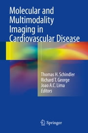 Molecular and Multimodality Imaging in Cardiovascular Disease ebook by Thomas H. Schindler,Richard T. George,Joao A.C. Lima