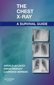 The Chest X-Ray: A Survival Guide E-Book ebook by Gerald de Lacey, MA, FRCR,...