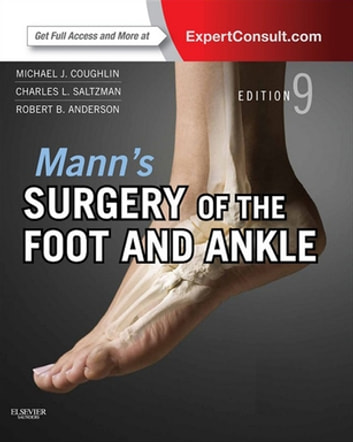 Mann's Surgery of the Foot and Ankle E-Book - Expert Consult - Online ebook by Michael J. Coughlin, MD,Charles L. Saltzman, MD,Roger A. Mann, MD