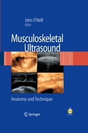 Musculoskeletal Ultrasound - Anatomy and Technique ebook by John M. D. O'Neill
