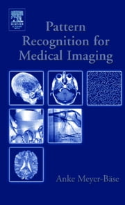 Pattern Recognition and Signal Analysis in Medical Imaging ebook by Schmid, Volker J.