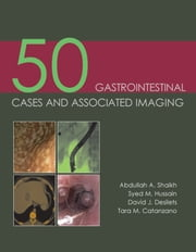 50 Gastrointestinal Cases and Associated Imaging ebook by Abdullah A Shaikh