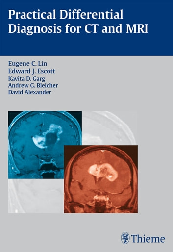 Practical Differential Diagnosis for CT and MRI ebook by