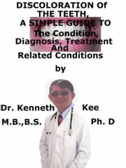 Discoloration of The Teeth, A Simple Guide To The Condition, Diagnosis, Treatment And Related Conditions ebook by Kobo.Web.Store.Products.Fields.ContributorFieldViewModel